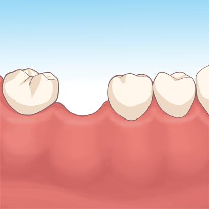 歯を失った状態を放置しておくリスク