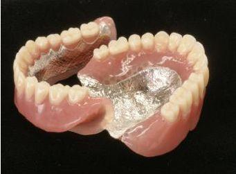 自費の義歯