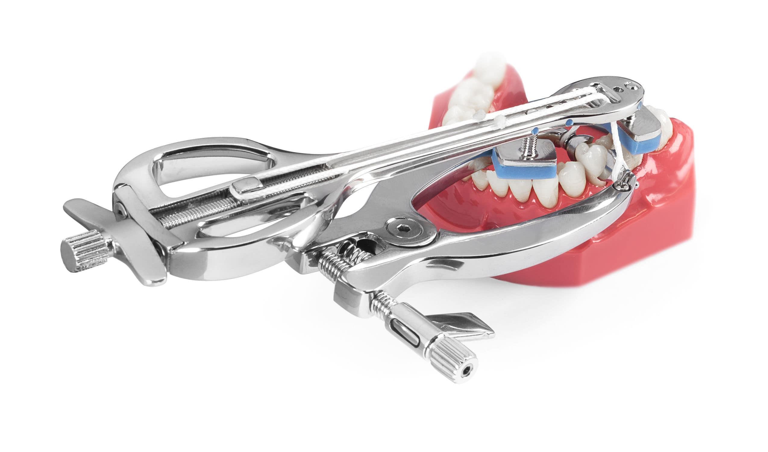 抜歯用器具